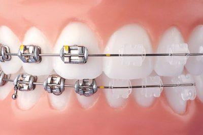 metal-vs-clear-braces